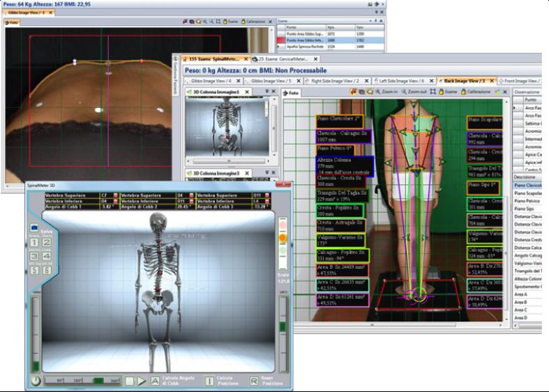 ricostruzione posturale 3d